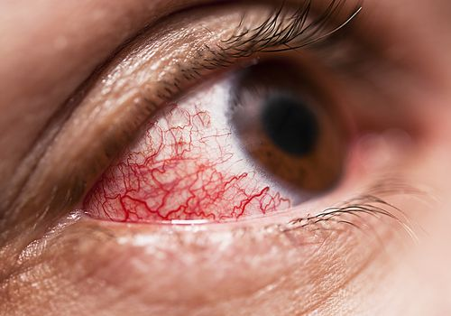 Inflammed Eye