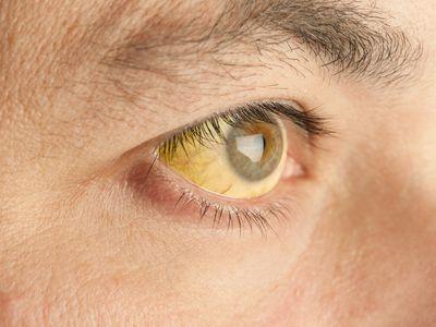 Jaundice eyes