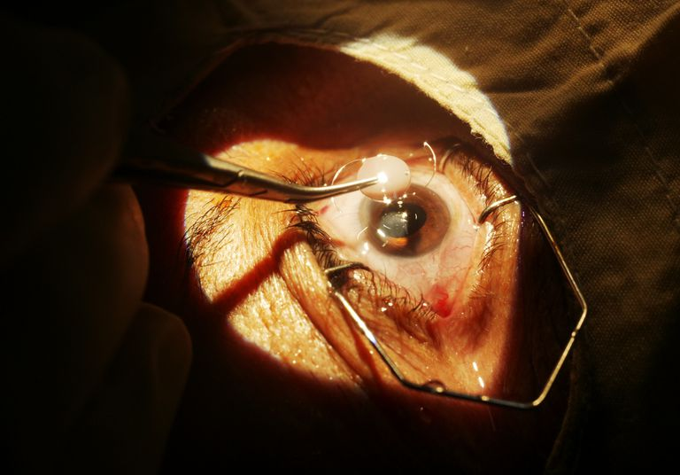 A surgeon ready to insert the intraocular lens implant.
