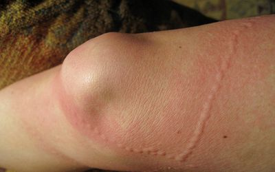 How to Remove a Bee Stinger in the Skin