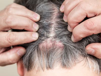 Close up of a the back of the head of a person with a skin condition of the scalp.