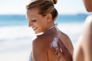 Treating sunburn