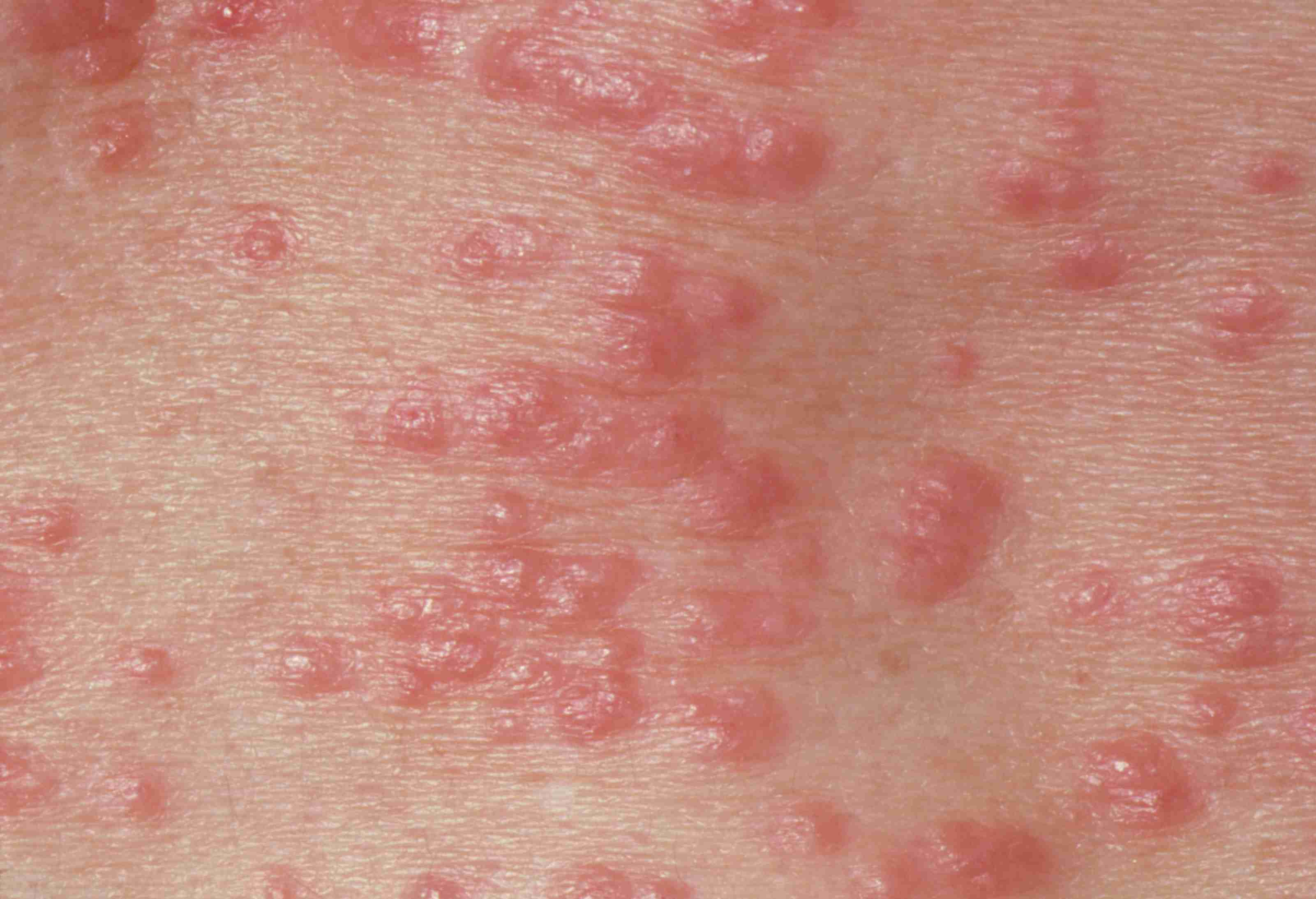 What 9 Common Skin Rashes Look Like