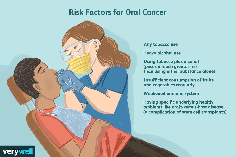 Risk Factors for Oral Cancer