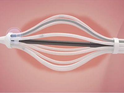 SAVI brachytherapy