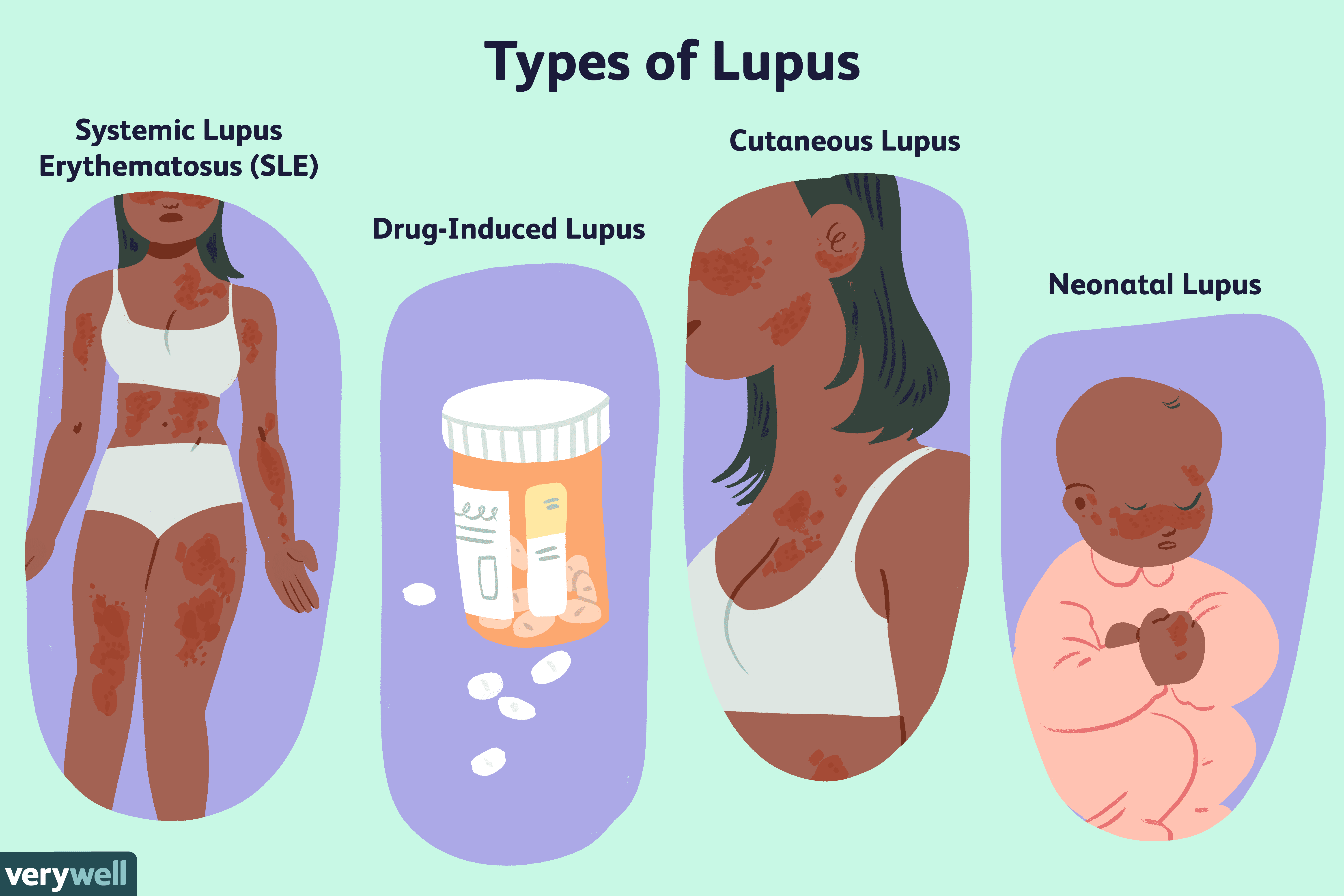 Lupus: Symptoms, Causes, Diagnosis, Treatment, and Coping