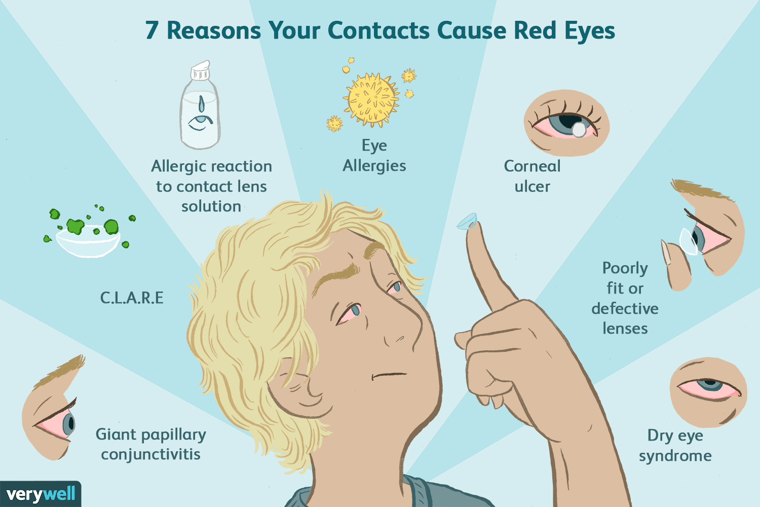 Causes of Red Eyes in Contact Wearers
