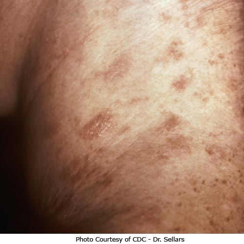 How To Recognize Pityriasis Rosea
