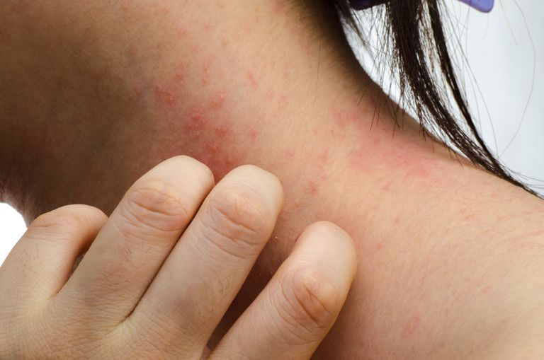 Woman scratching contact dermatitis on her neck