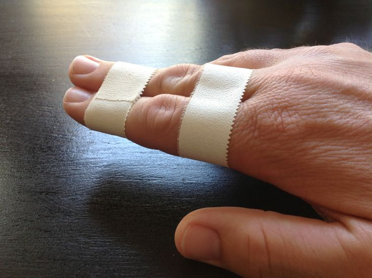 Learn How To Buddy Tape A Finger