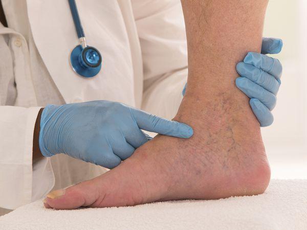 Lower limb vascular examination - stock photo