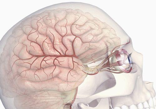 Cranial nerve damage