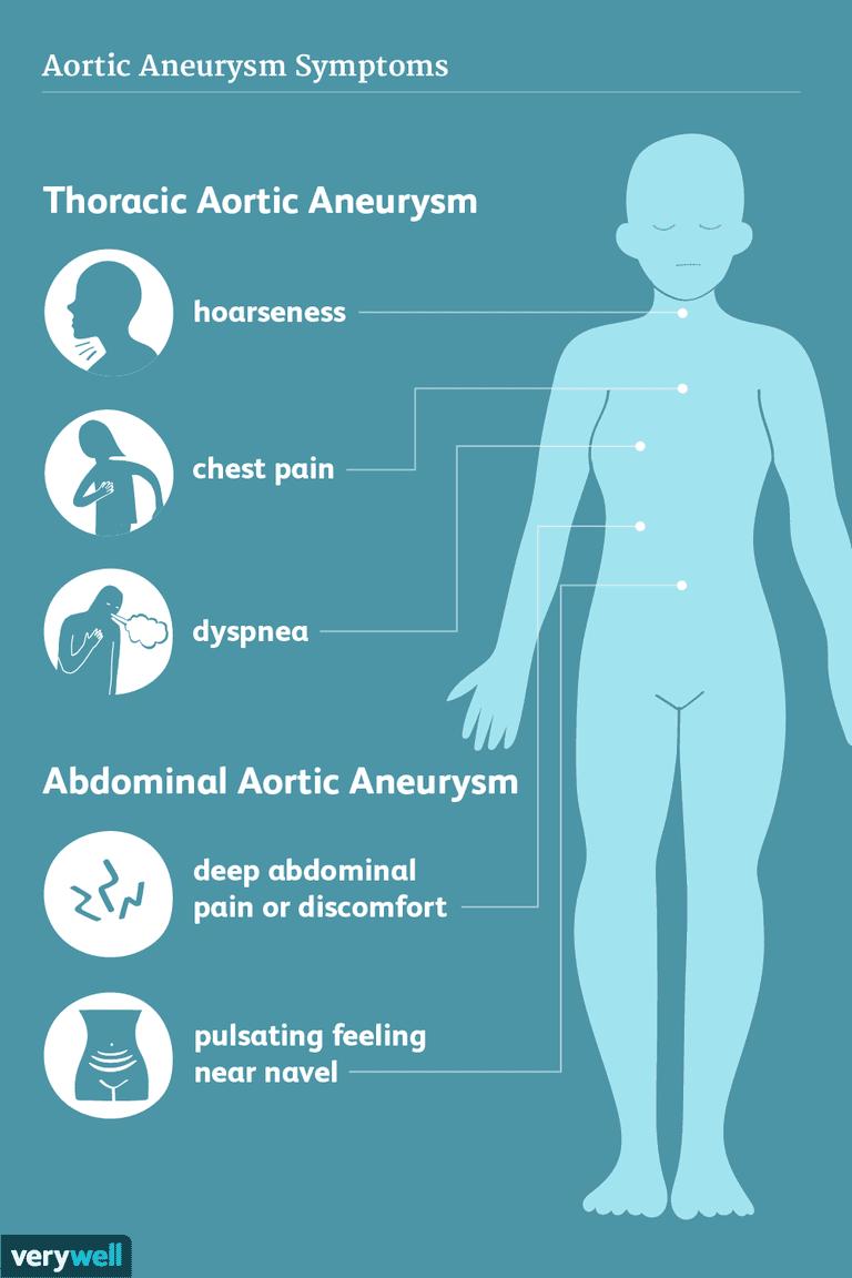 aortic aneurysm symptoms