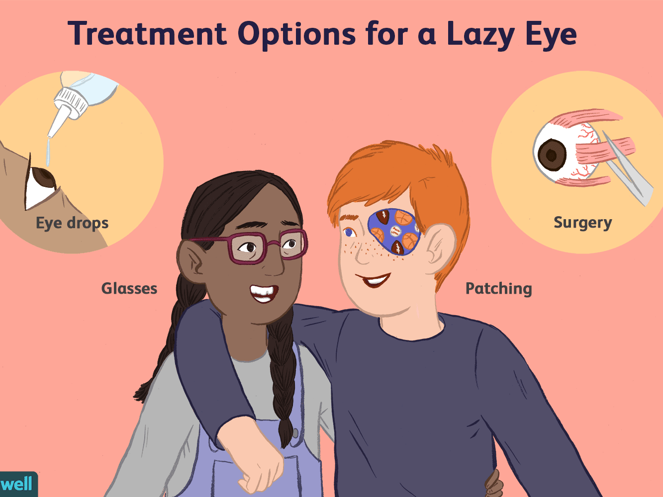 What Are the First Signs of Lazy Eye in Infants?