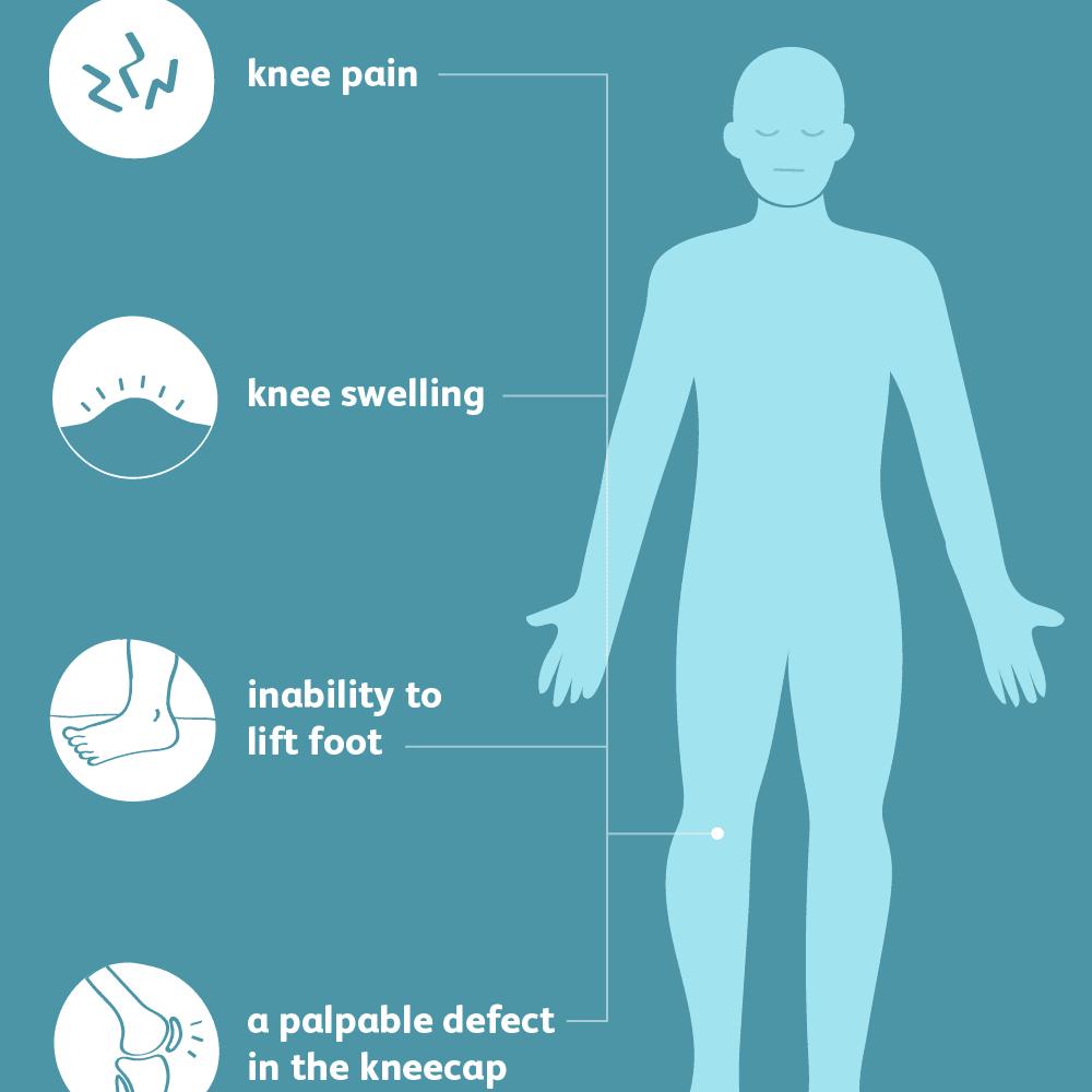 Common Symptoms of Patella Fracture