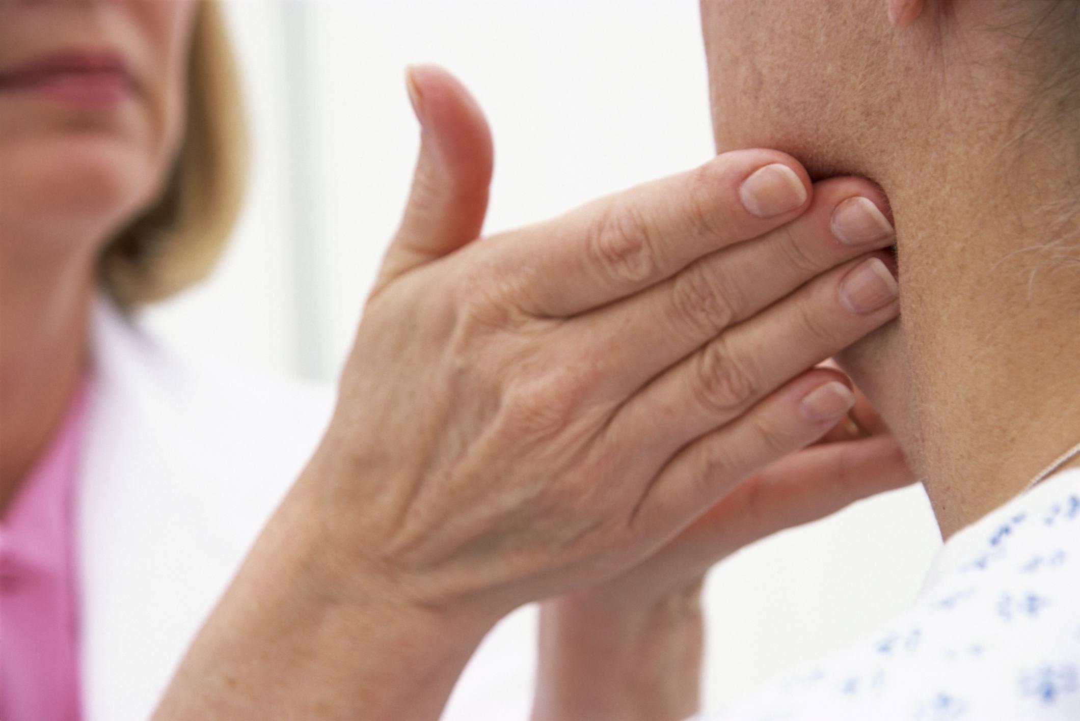 HIV and Lymphadenopathy (Swollen Lymph Nodes)