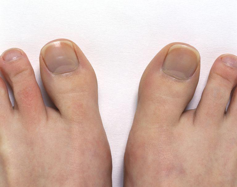 The Big Toe