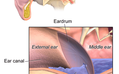 Myringotomy Surgery For Ear Tubes