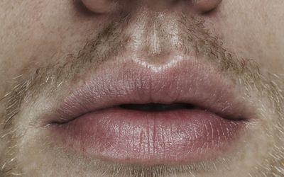 Does Mouthwash Reduce Risk of Oral STDs?