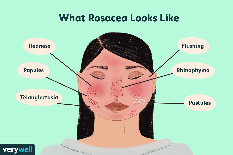 What Rosacea Looks Like