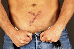 Surgery Images, Surgery Patients Images,