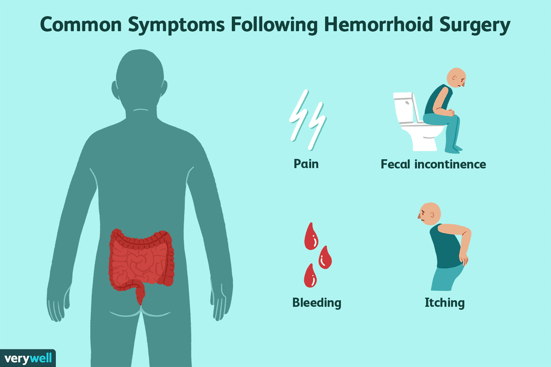 Common Symptoms Following Hemorrhoid Surgery