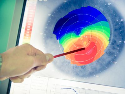 an eye doctor reviewing a corneal topography map