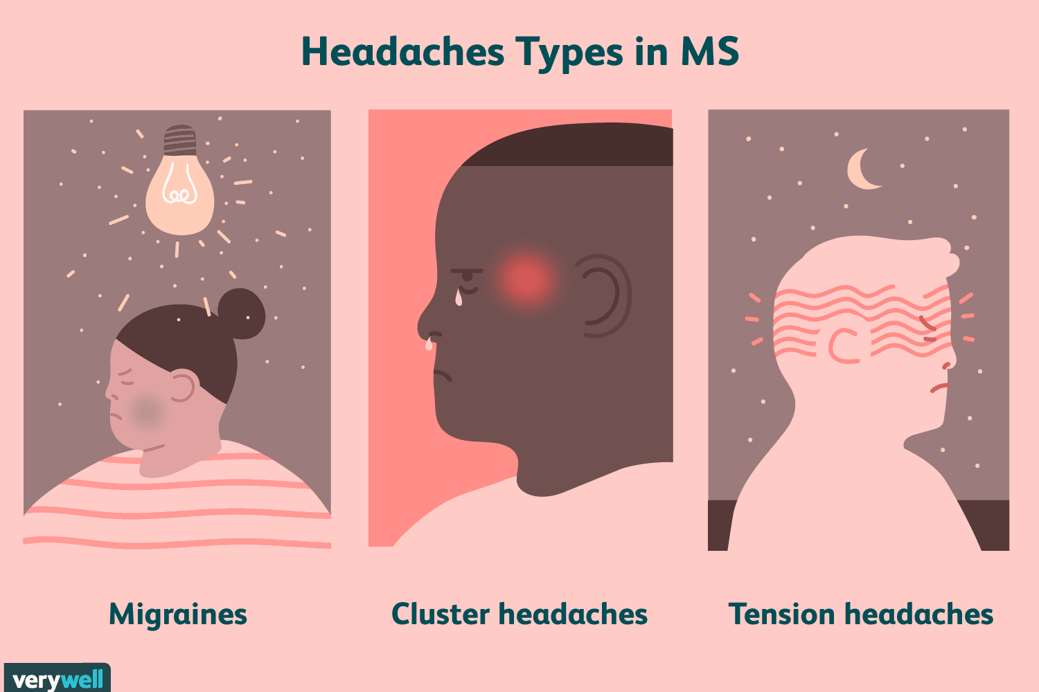 Headaches in MS: Types, Symptoms, Causes, Diagnosis, Treatments
