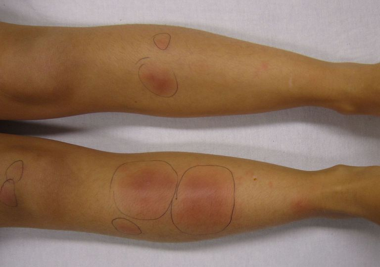 Panniculitis on the legs