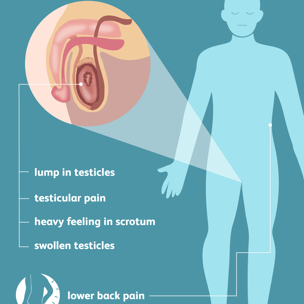 Signs, Symptoms, and Complications of Testicular Cancer