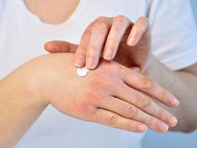 putting moisturizer to treat Psoriasis