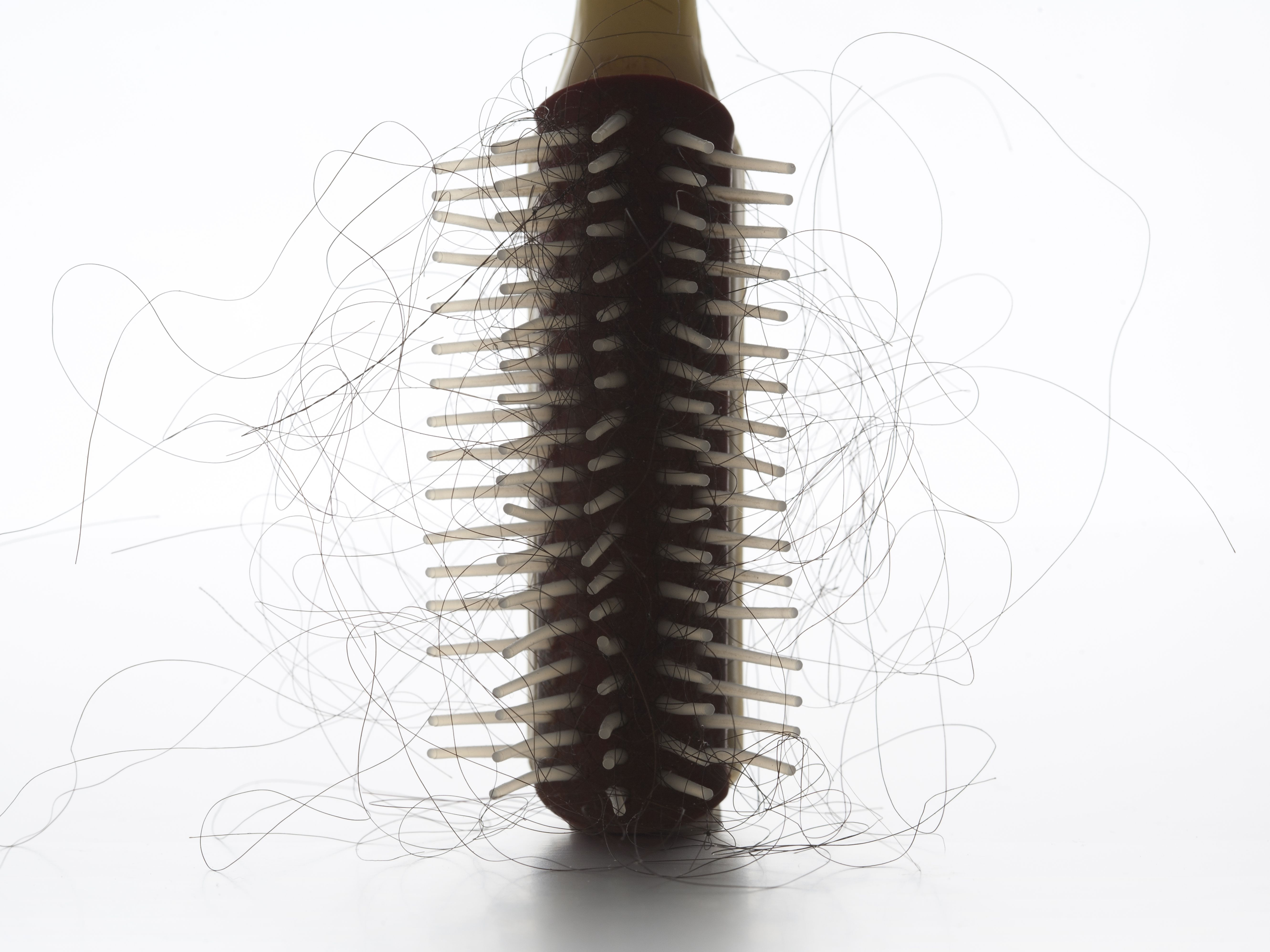The Causes of Hair Loss When You Have Lupus