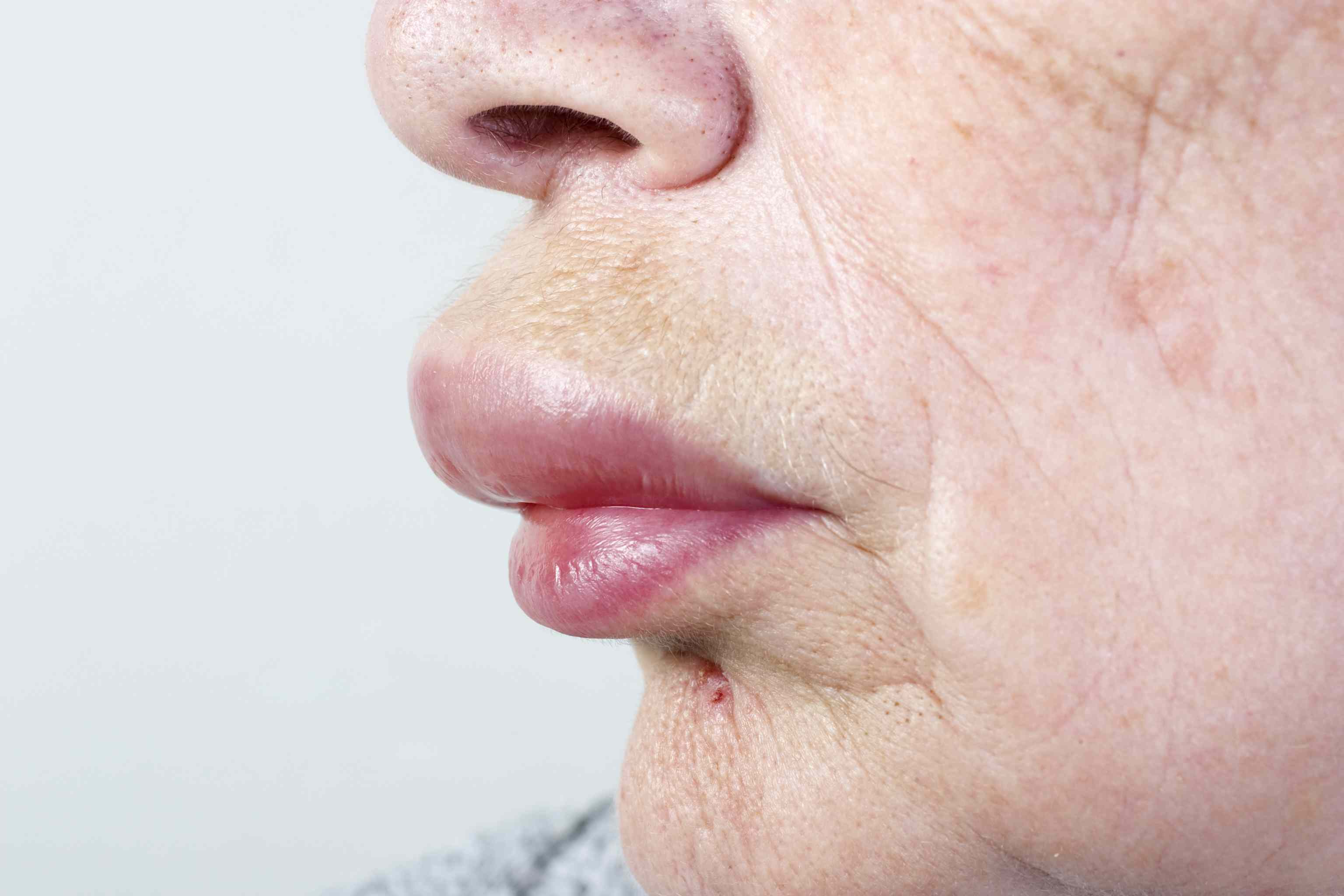 woman with a swollen lip having an allergic reaction