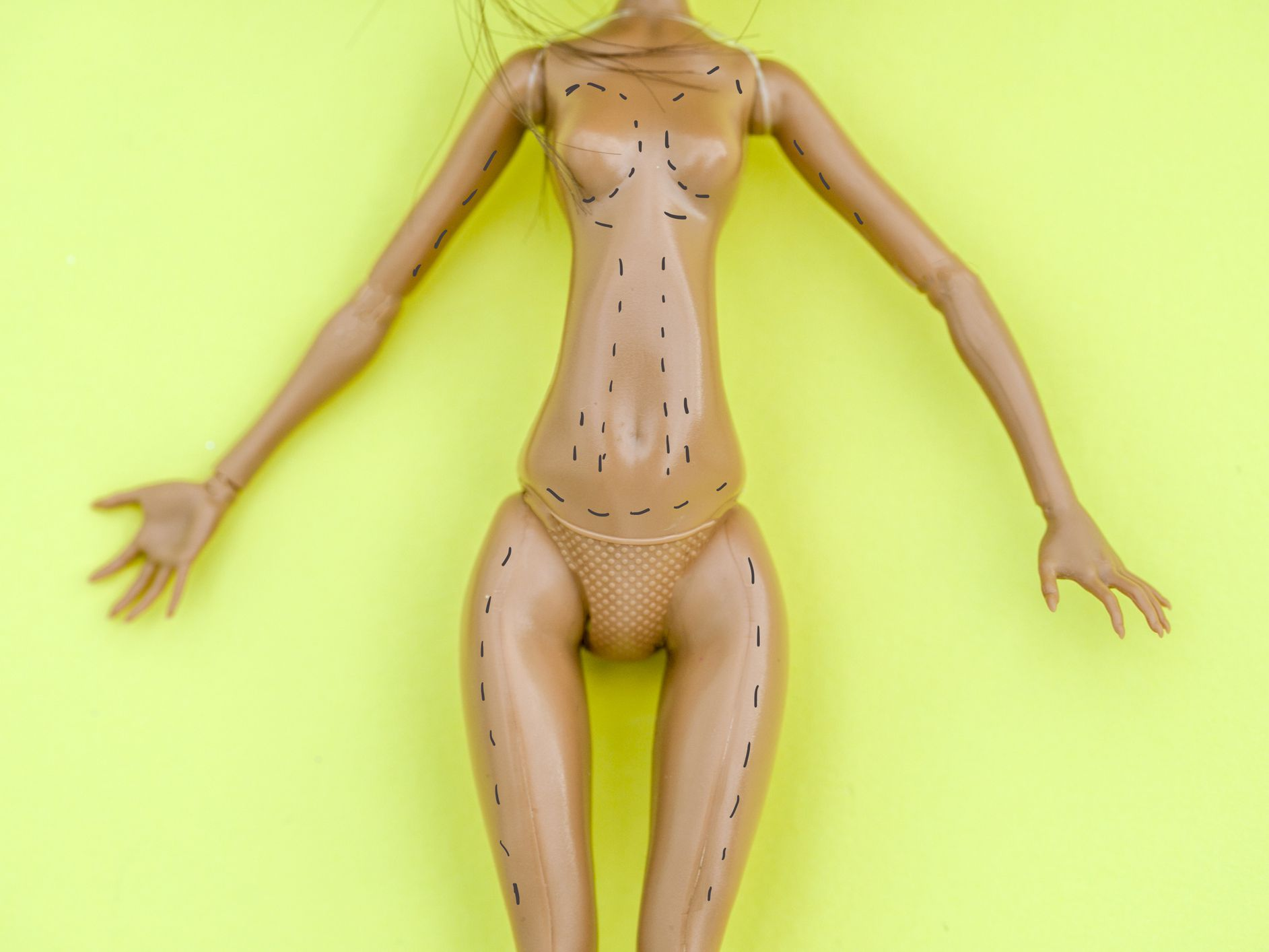Common Misconceptions About Liposuction