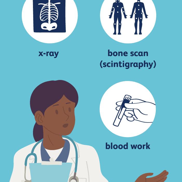 Paget's disease diagnosis
