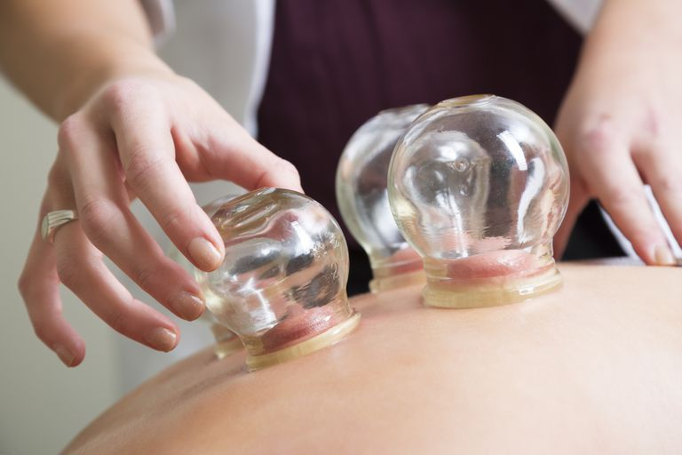 Aupuncturist performs massage cupping therapy