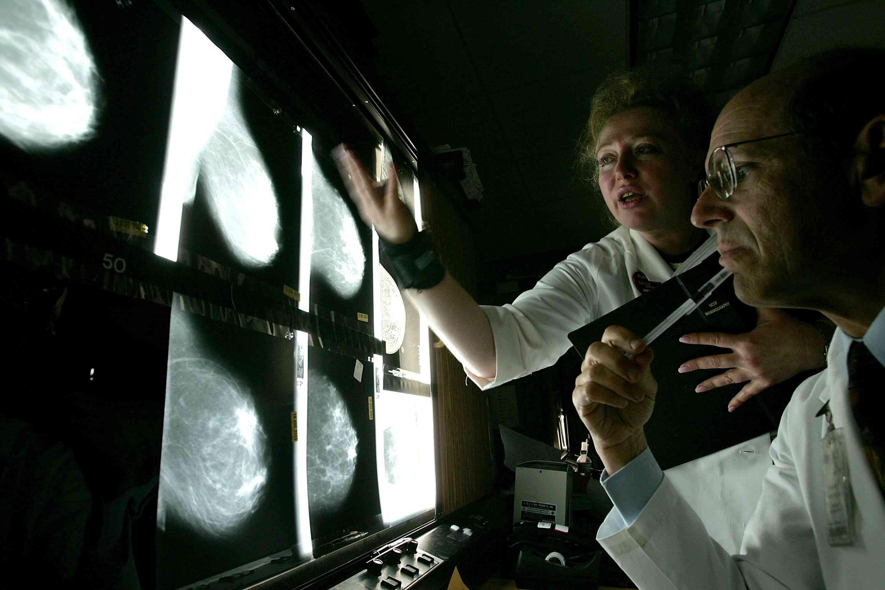 Doctors looking at a breast X-Ray
