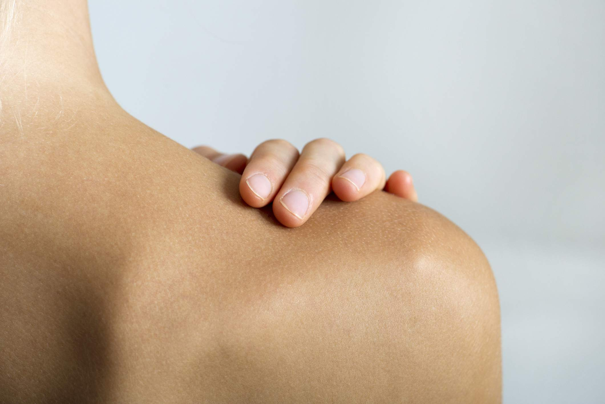 How To Prevent Or Minimize Surgery Scars