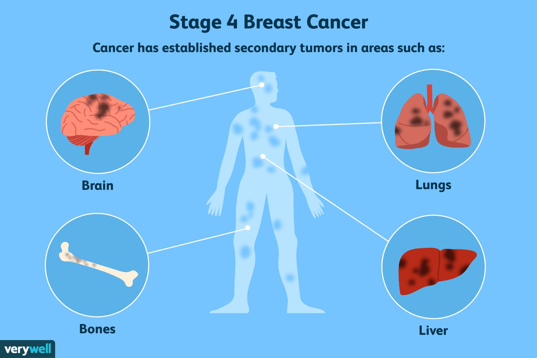 aggressive cancer in liver