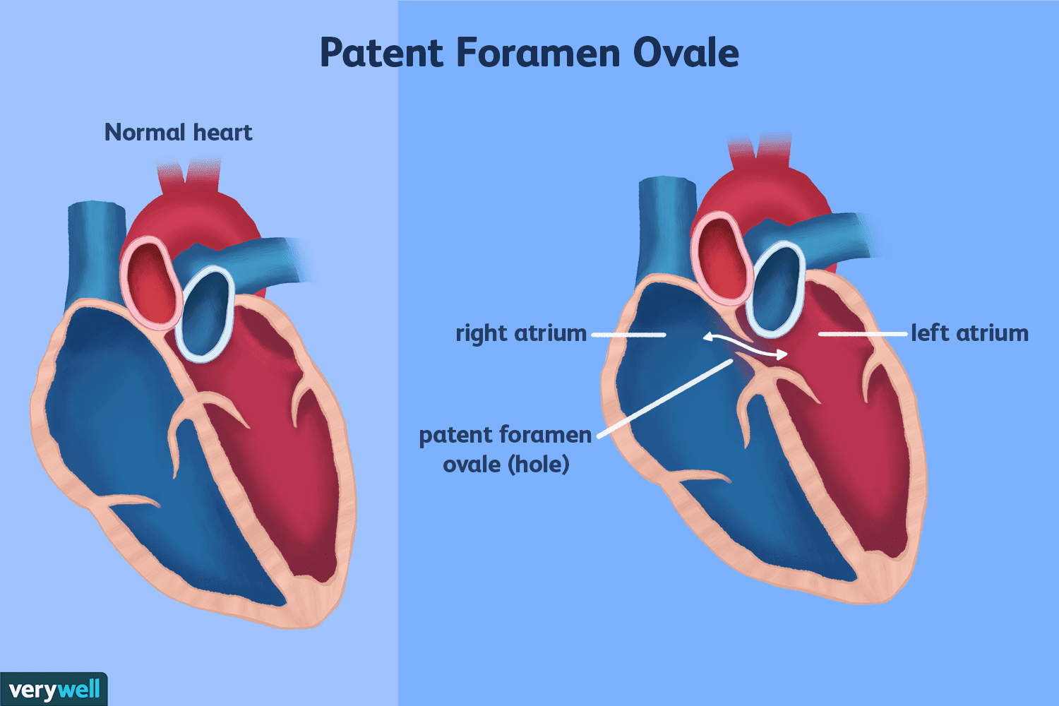 Patent Foramen Ovale and Migraines: A Controversial Link