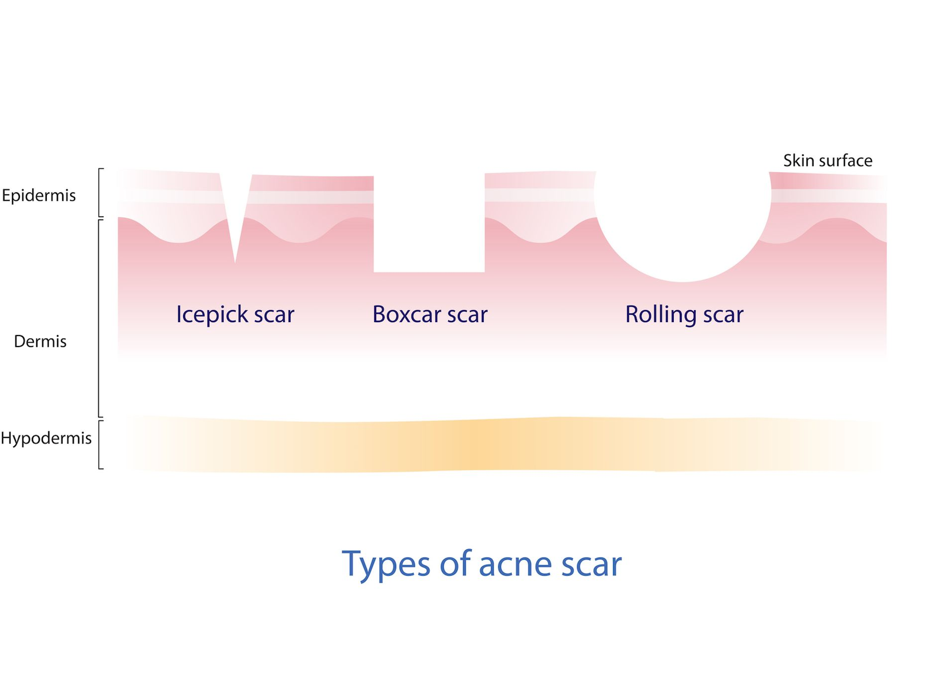 what causes scarring with acne