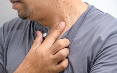 Closed up the Skin Tags or Acrochordon on neck man on white background