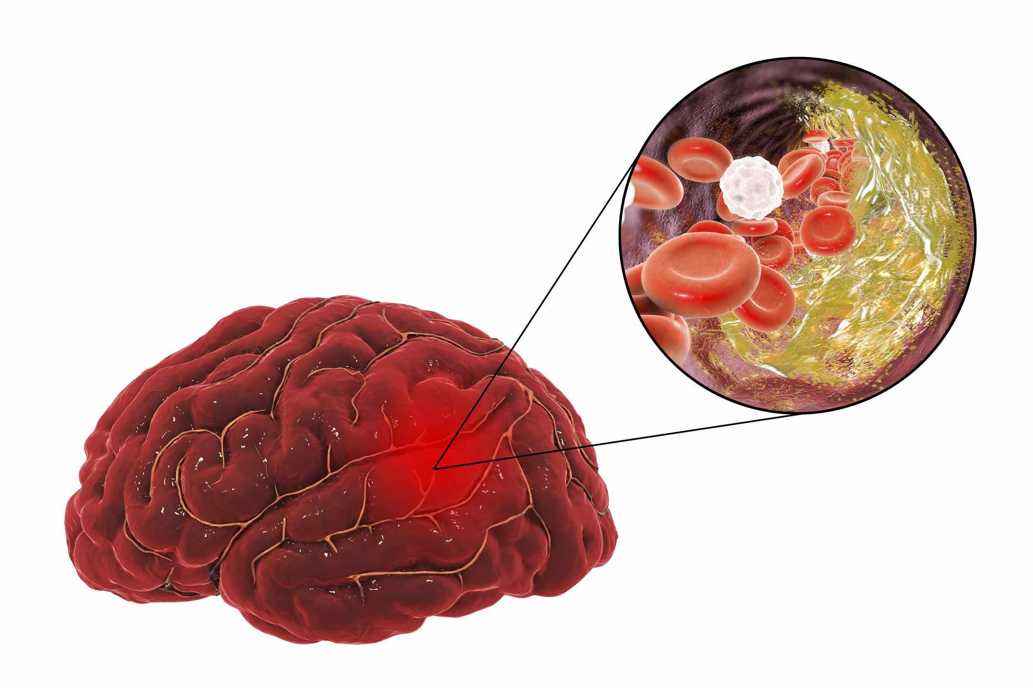 Hypertension Heart Disease