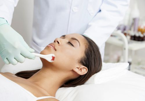 woman getting microneedling treatment