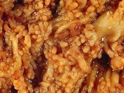 Pseudopolyps in Chronic Ulcerative Colitis