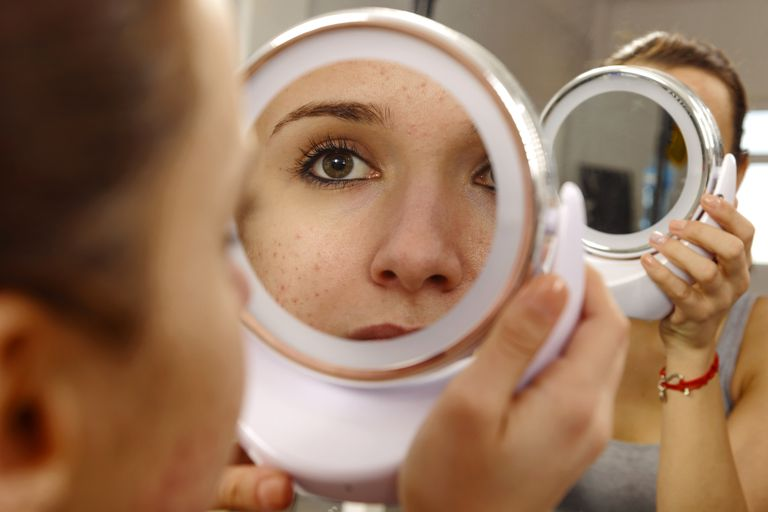 woman with acne looking at her face in a handheld mirror