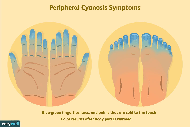 peripheral cyanosis symptoms