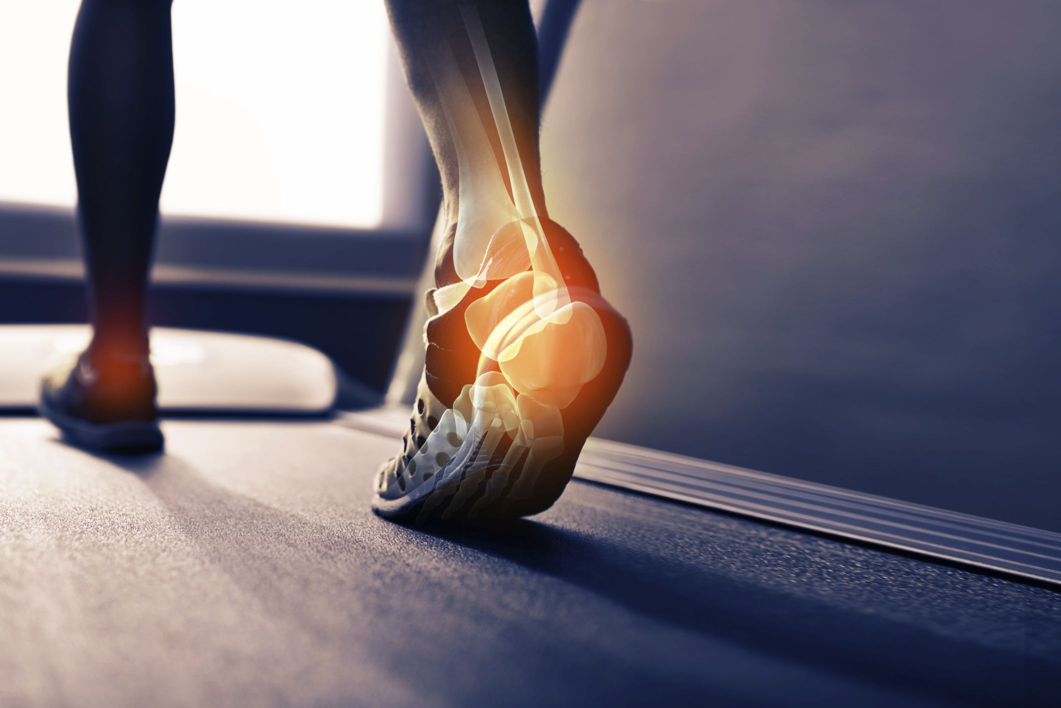 Stretching Exercises for Plantar Fasciitis