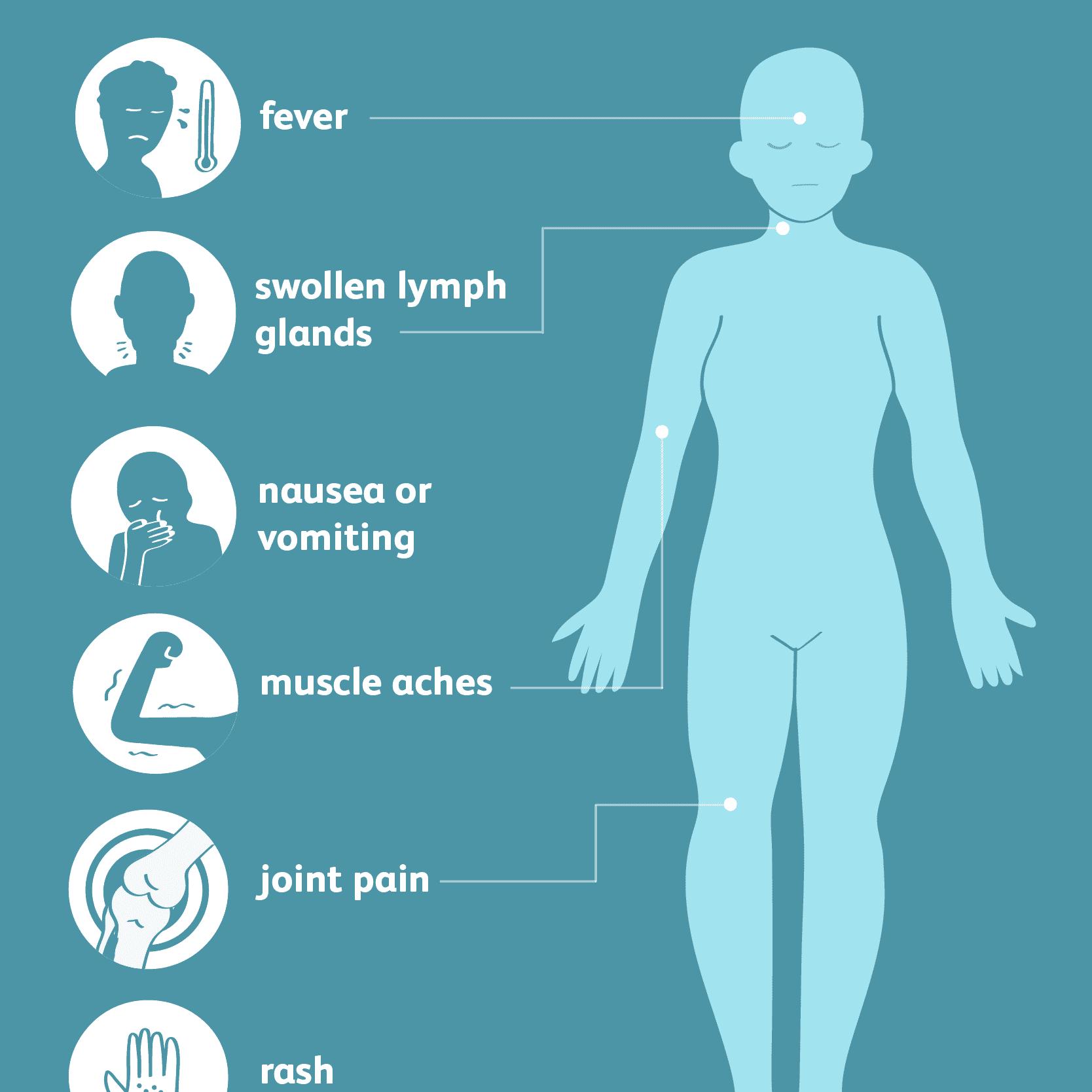 West Nile virus: common symptoms