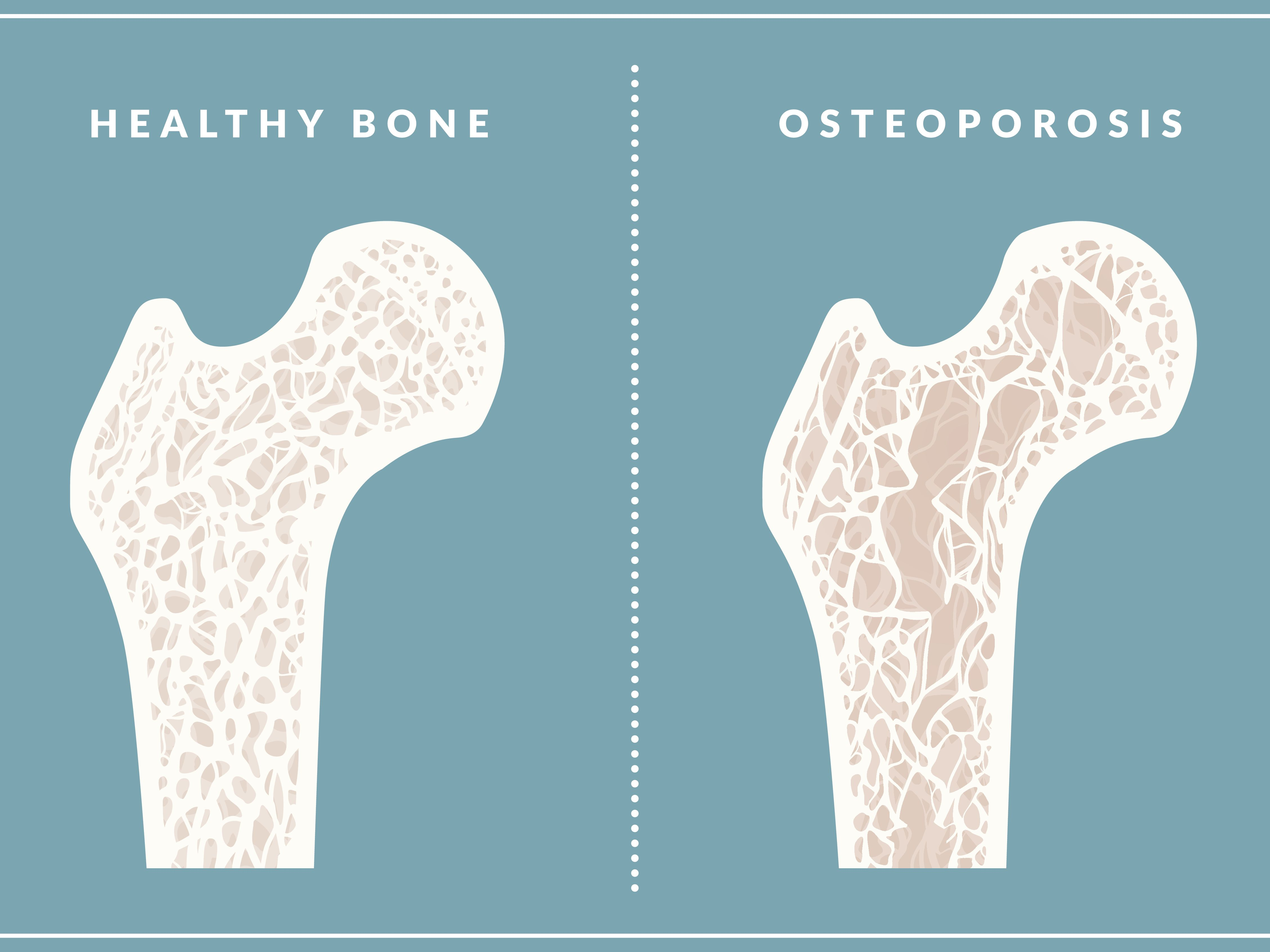 Is It Safe to Take Fosamax to Treat Osteoporosis?